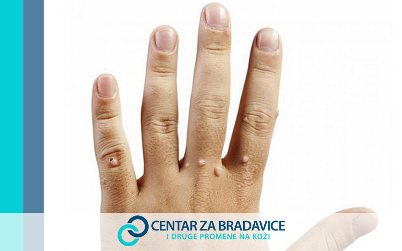 Uklanjanje bradavice | Skidanje bradavica | Uklanjanje bradavica Beograd | Skidanje bradavica Novi Sad | Bradavice